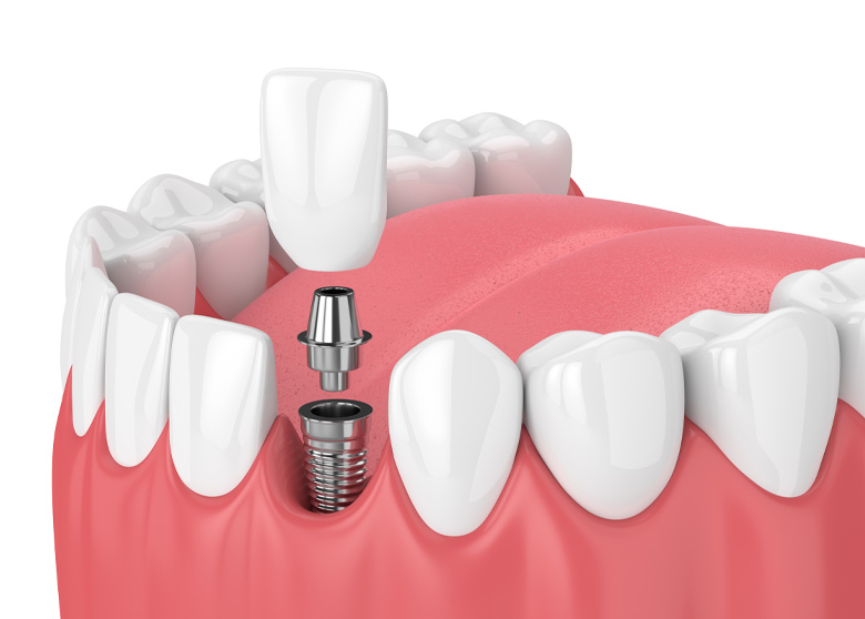 Computer generated graphic showing the dental implant process with a single tooth.