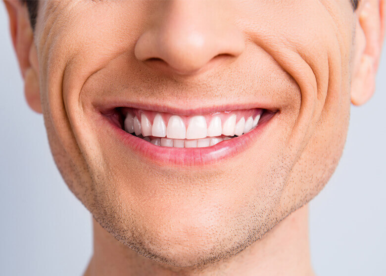 Man smiling with white teeth