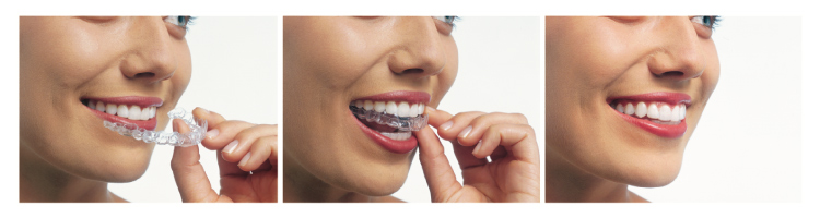 Trio of photos showing a woman inserting an Invisalign tray into her mouth
