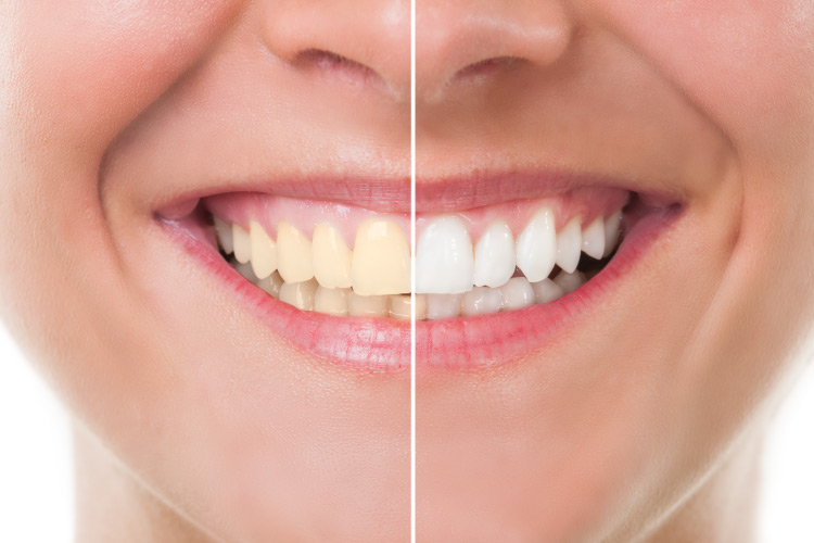 Smiling woman with the left half of the smile a bit yellowed and the right half bright white after professional whitening